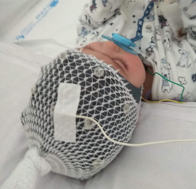 Prueba de Electroencefalograma (EEG)